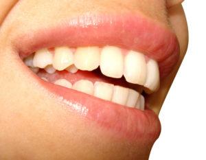 tandskadedækning
